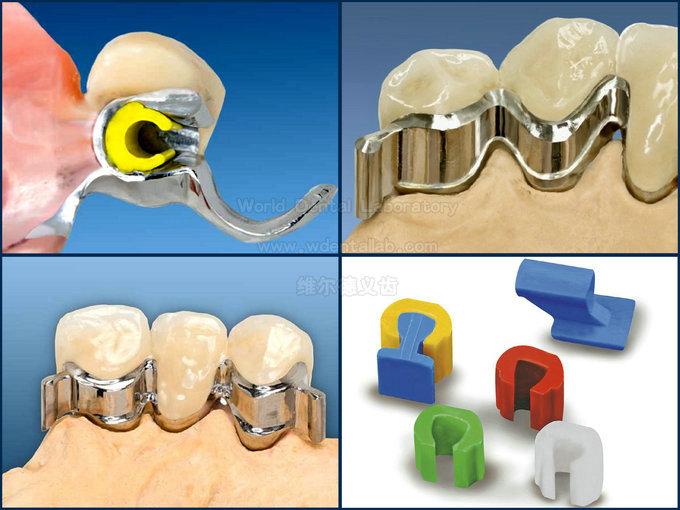 china dental lab