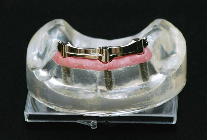 World Dental Laboratory Co , Ltd ---An full-service modern